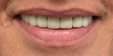 dental-implants-5