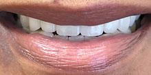 dental-implants-4