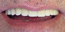 dental-implants-2