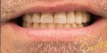 dental-implants-36