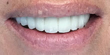 dental-implants-39