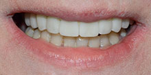 dental-implants-35