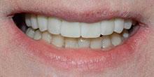 dental-implants-35