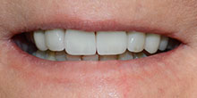 dental-implants-34