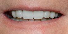 dental-implants-34