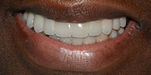 dental-implants-31