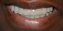 dental-implants-31