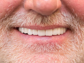 MG After Teeth-in-a-Day Dental Implants